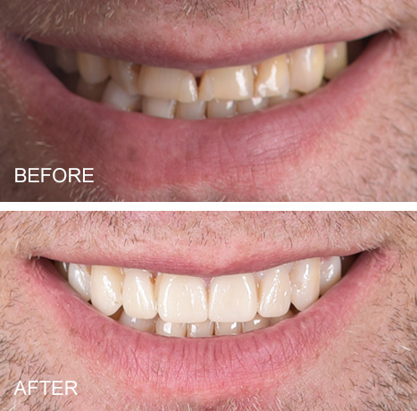 Smile makeover of worn teeth from grinding.