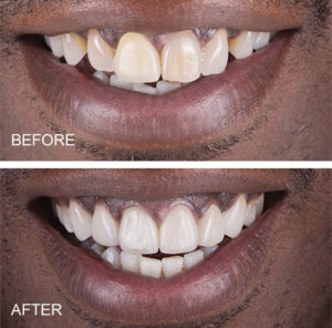 ceramic crowns and veneers