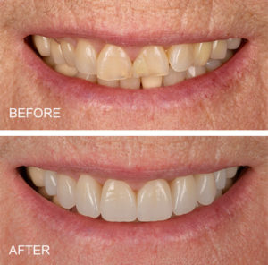 Worn front teeth restored with all ceramic crowns.