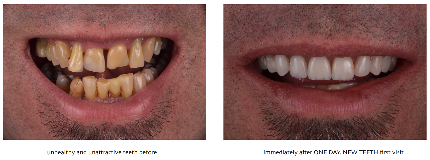 One Day Teeth Before and After